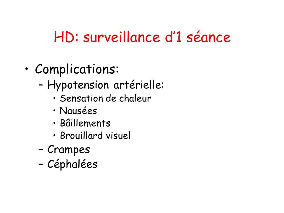 HD: surveillance d'1 séance