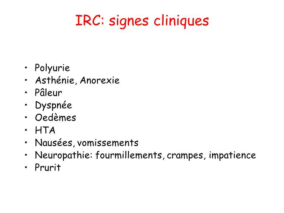 IRC: signes cliniques Polyurie Asthénie, Anorexie Pâleur Dyspnée