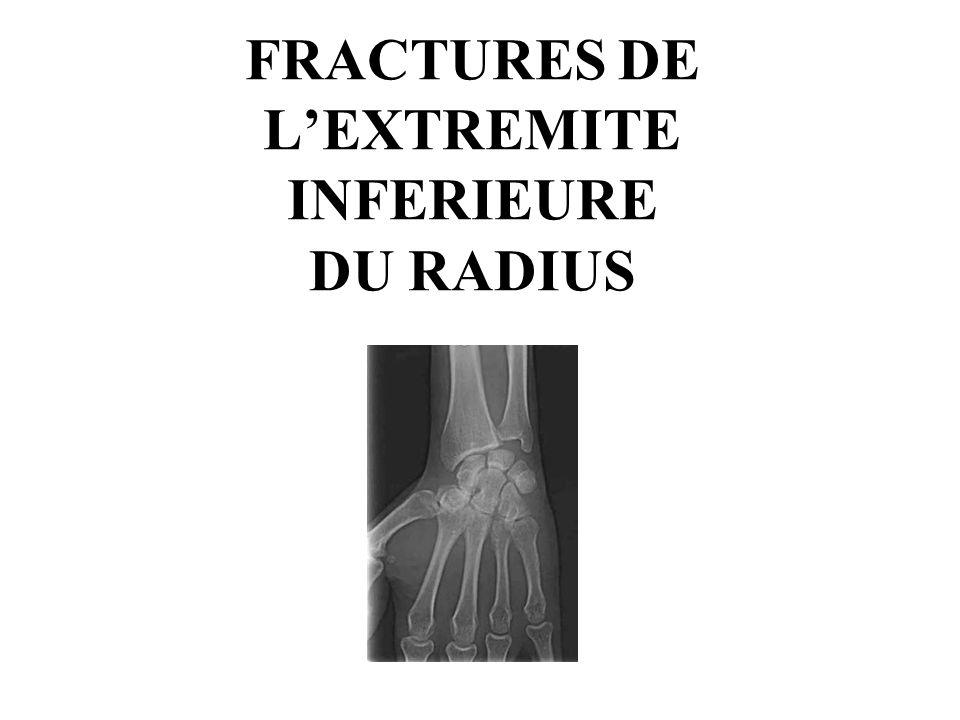 FRACTURES DE L'EXTREMITE INFERIEURE DU RADIUS