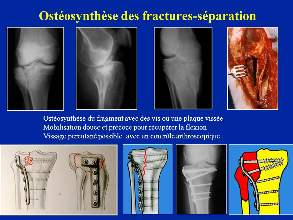 Ostéosynthèse des fractures-séparation