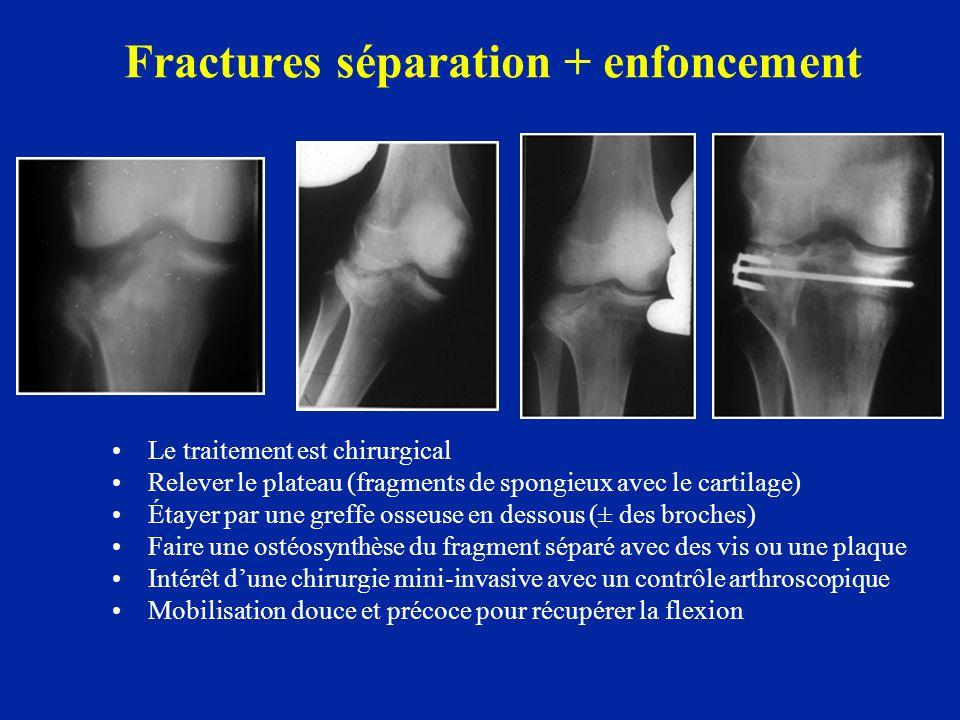 Fractures séparation + enfoncement