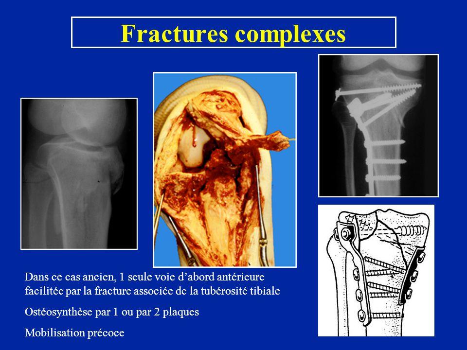 Fractures complexes Dans ce cas ancien, 1 seule voie d'abord antérieure facilitée par la fracture associée de la tubérosité tibiale.