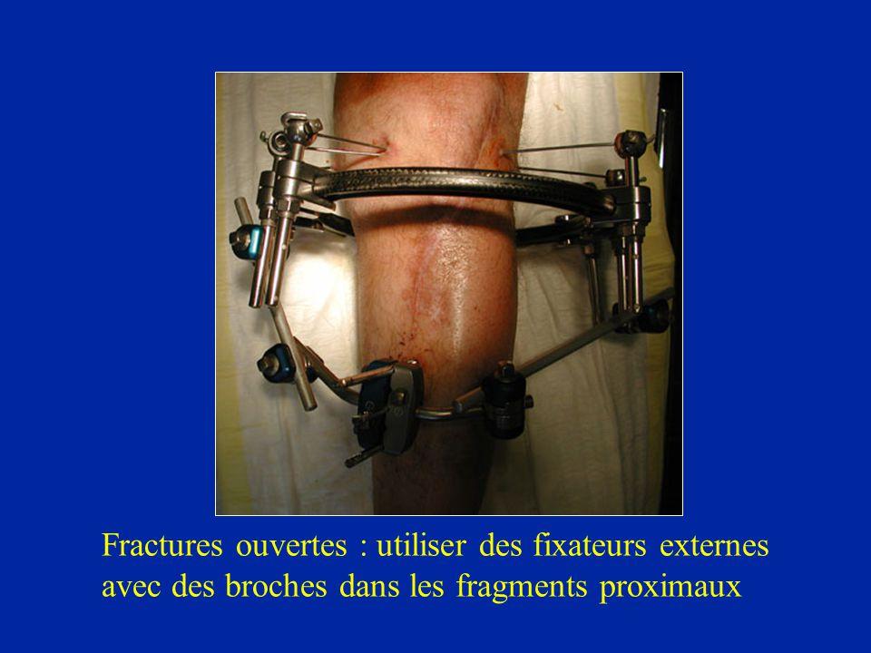 Fractures ouvertes : utiliser des fixateurs externes avec des broches dans les fragments proximaux