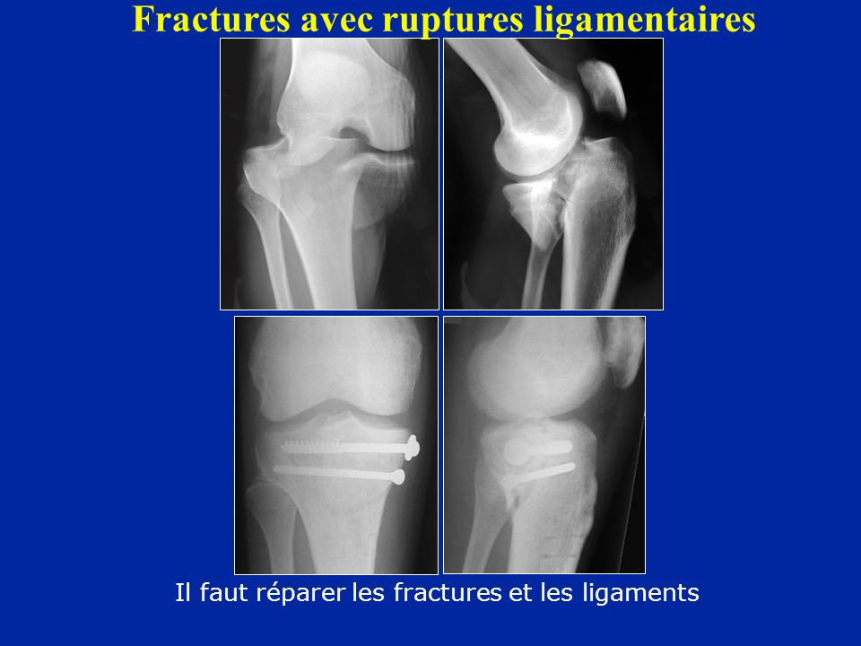 Fractures avec ruptures ligamentaires