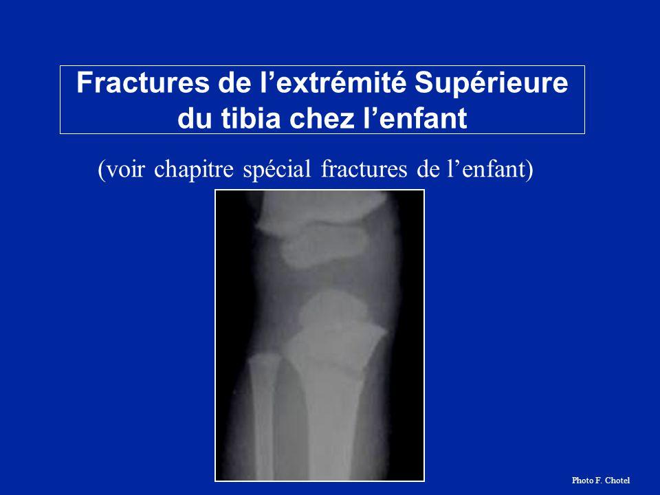 Fractures de l'extrémité Supérieure du tibia chez l'enfant
