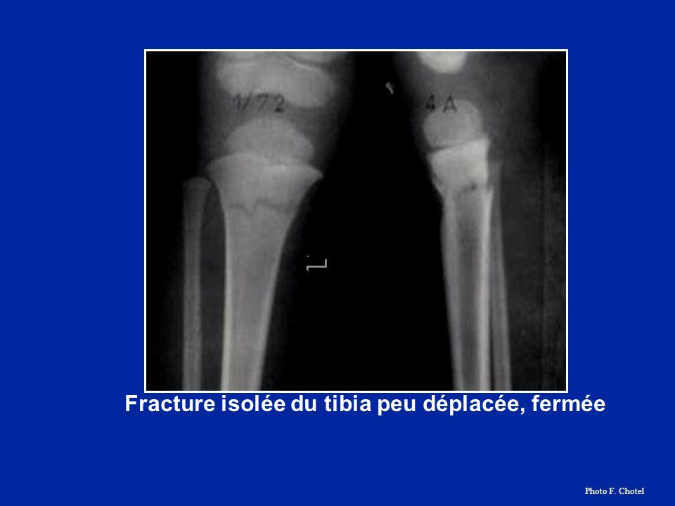 Fracture isolée du tibia peu déplacée, fermée