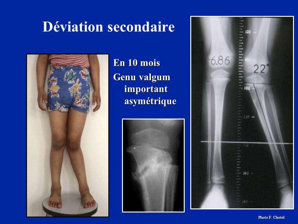 Déviation secondaire En 10 mois Genu valgum important asymétrique