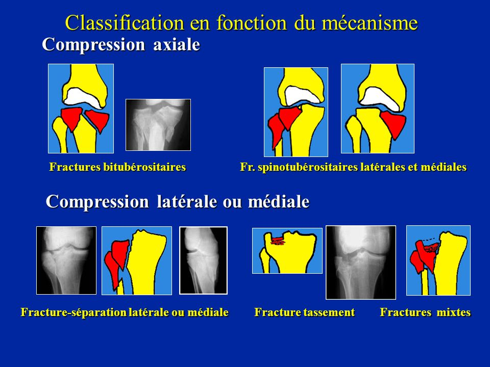Classification en fonction du mécanisme