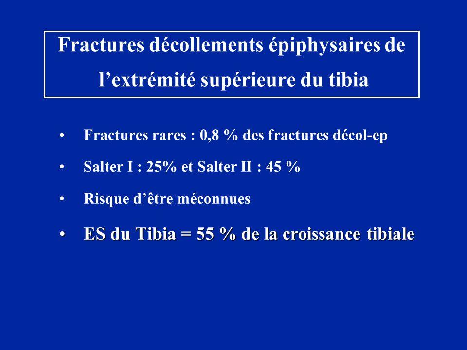 Fractures décollements épiphysaires de l'extrémité supérieure du tibia