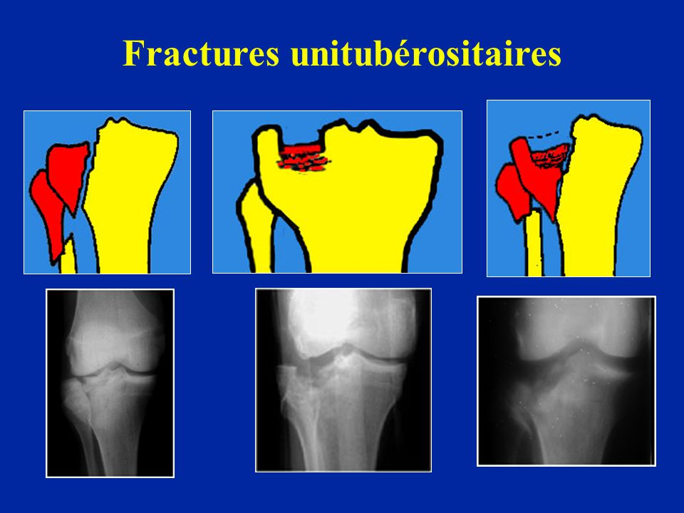 Fractures unitubérositaires