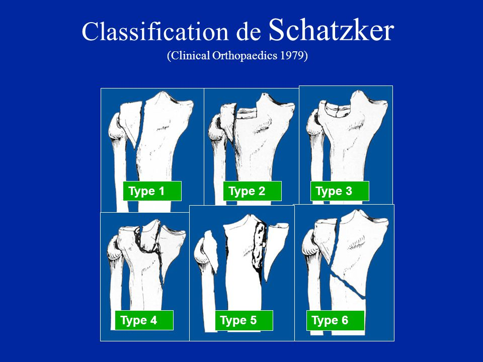 Classification de Schatzker (Clinical Orthopaedics 1979)