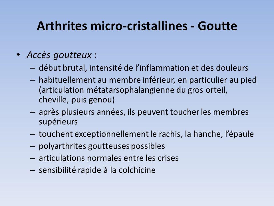 Arthrites micro-cristallines - Goutte