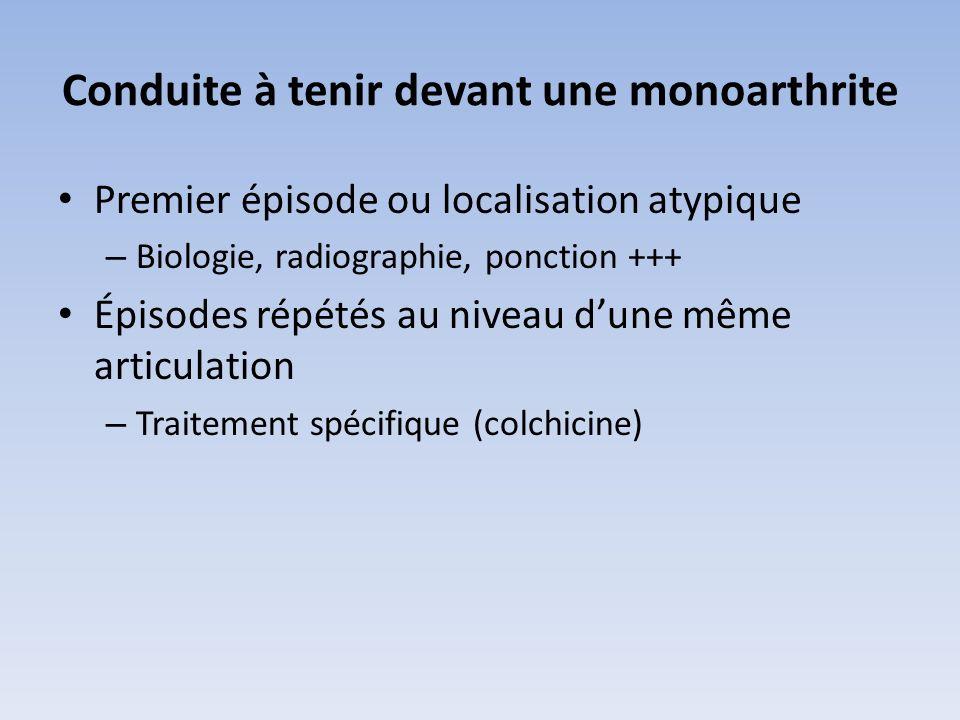 Conduite à tenir devant une monoarthrite