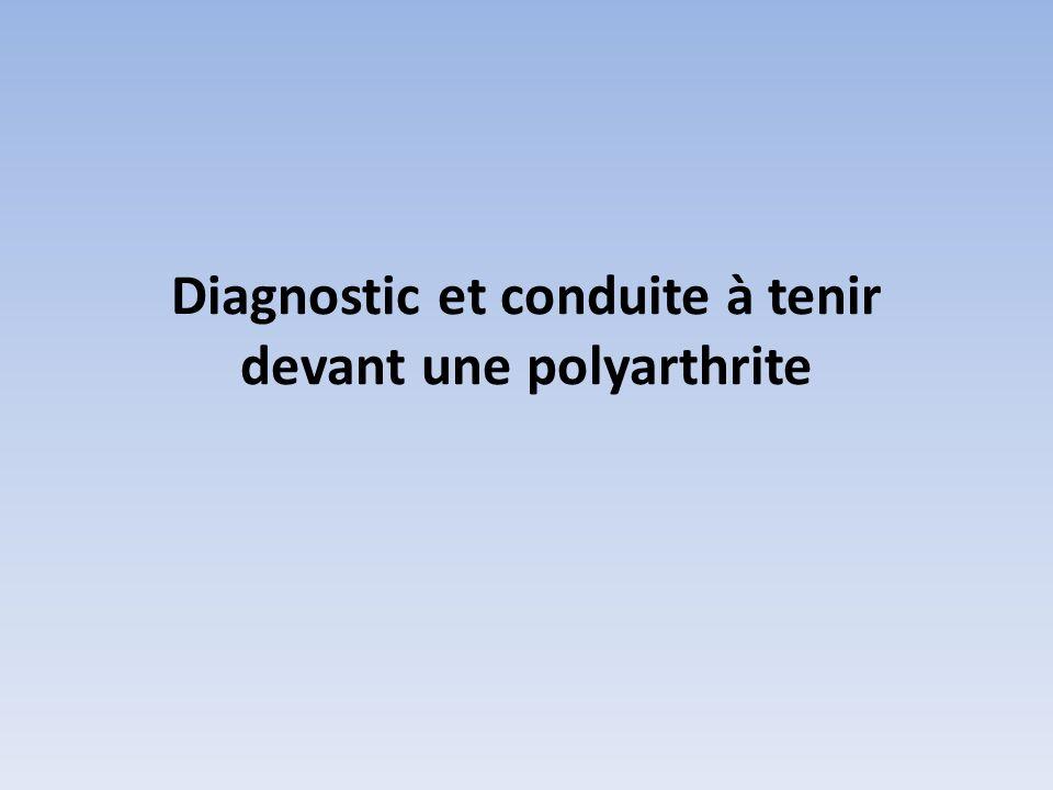 Diagnostic et conduite à tenir devant une polyarthrite