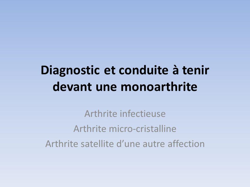 Diagnostic et conduite à tenir devant une monoarthrite
