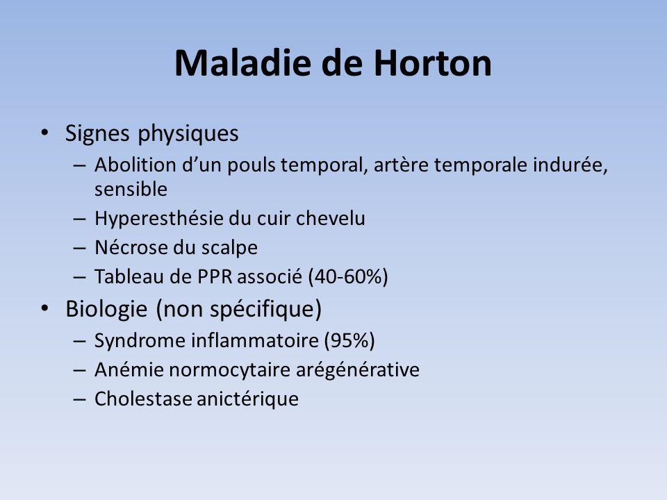 Maladie de Horton Signes physiques Biologie (non spécifique)