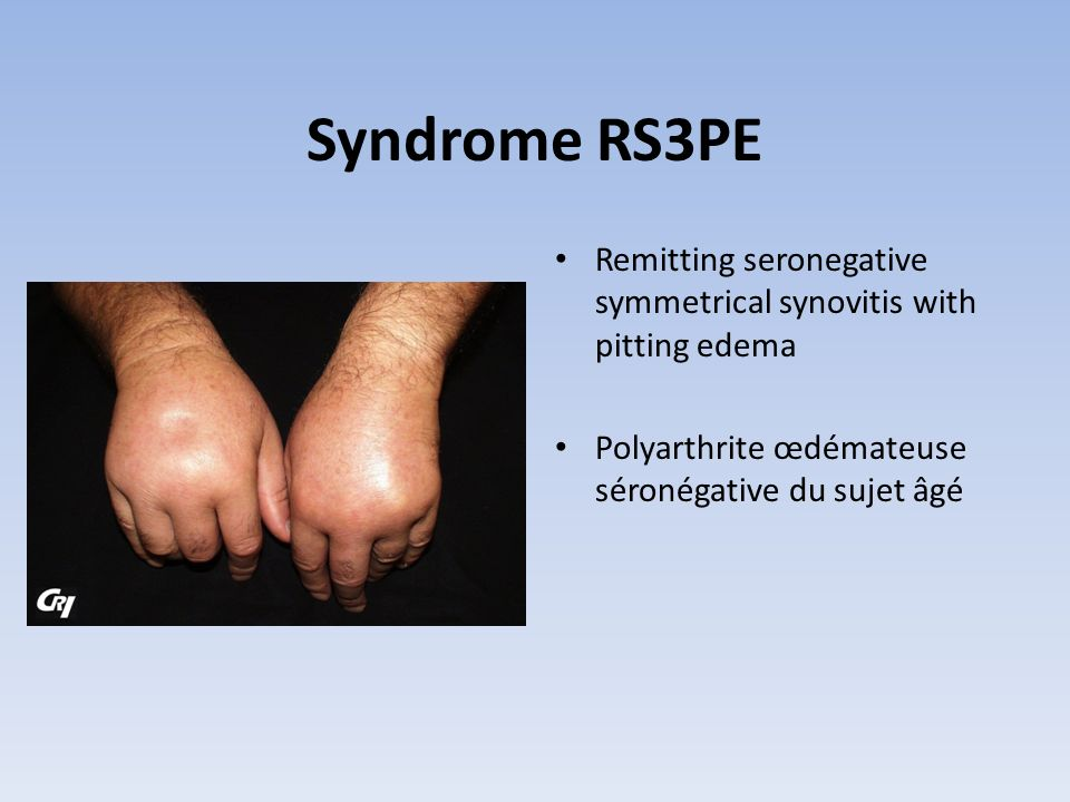 Syndrome RS3PE Remitting seronegative symmetrical synovitis with pitting edema.