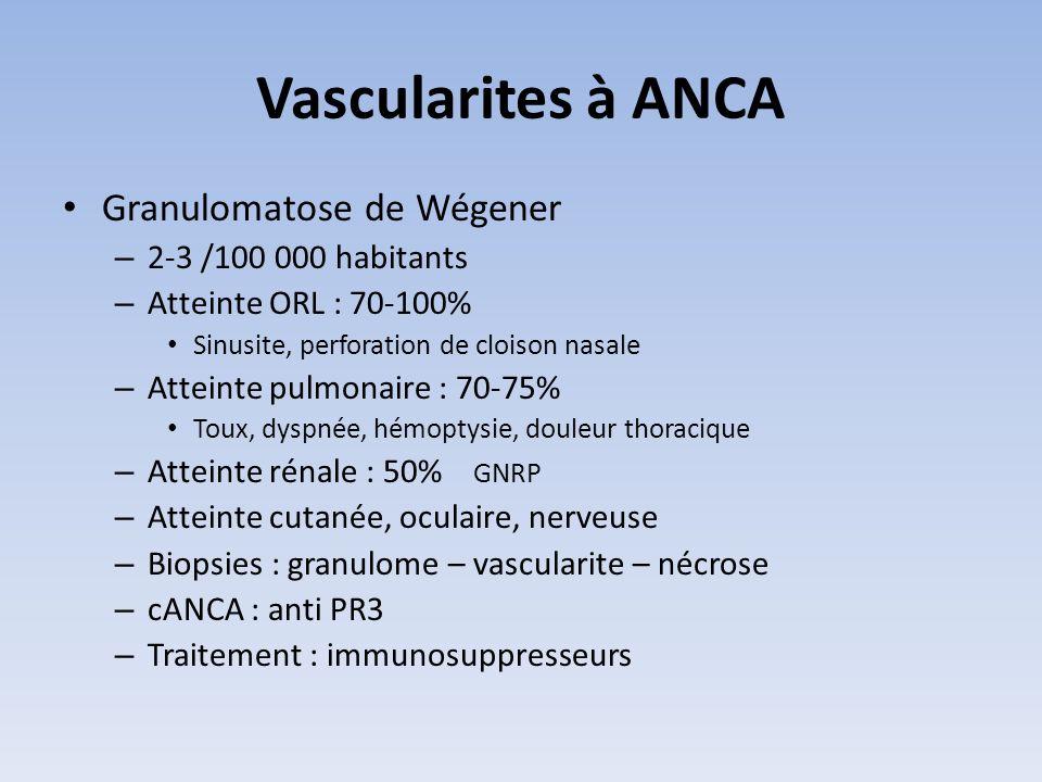 Vascularites à ANCA Granulomatose de Wégener 2-3 /100 000 habitants