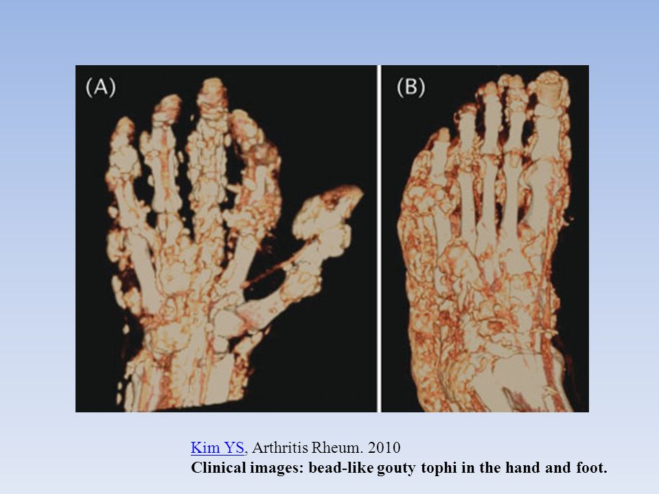 Kim YS, Arthritis Rheum. 2010 Clinical images: bead-like gouty tophi in the hand and foot.