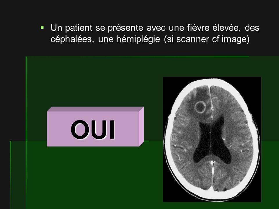 Un patient se présente avec une fièvre élevée, des céphalées, une hémiplégie (si scanner cf image)
