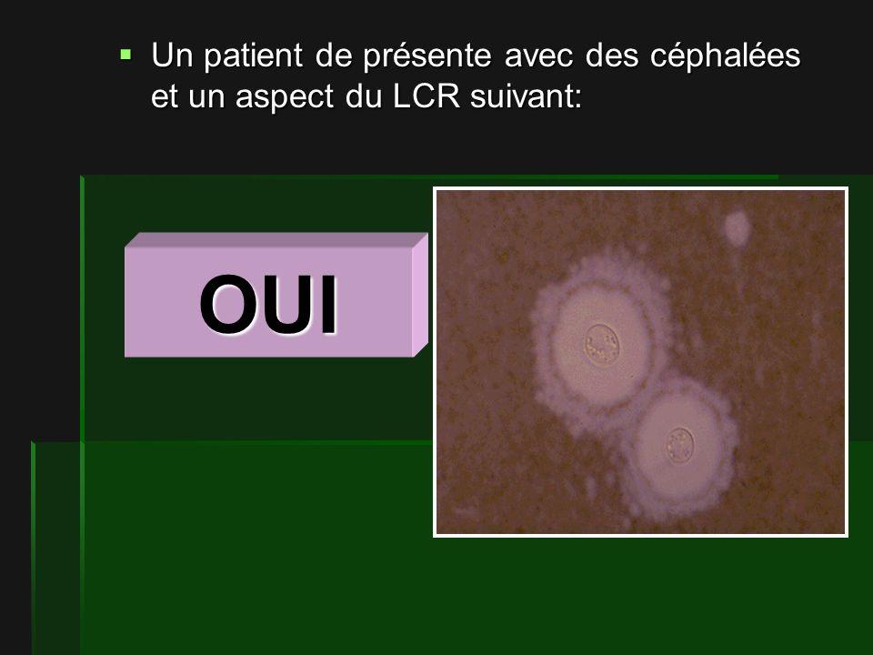 Un patient de présente avec des céphalées et un aspect du LCR suivant: