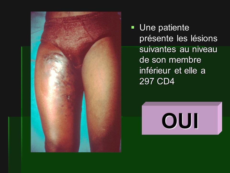 Une patiente présente les lésions suivantes au niveau de son membre inférieur et elle a 297 CD4