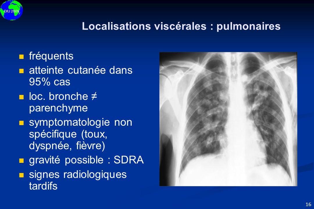 Localisations viscérales : pulmonaires
