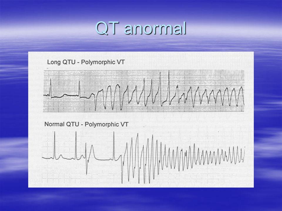 QT anormal