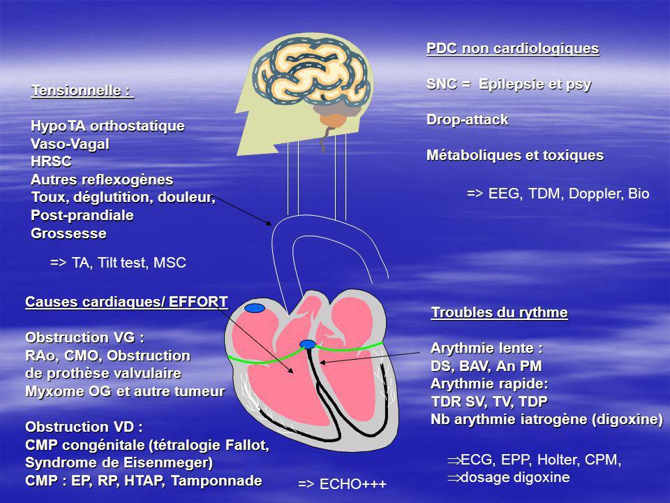 PDC non cardiologiques