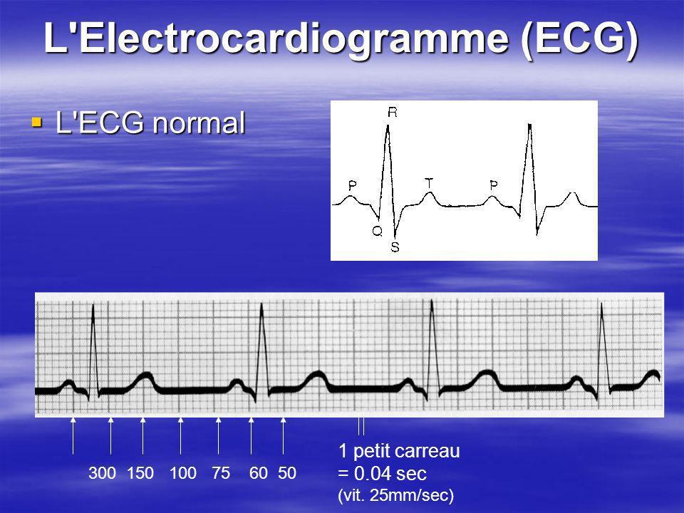 L Electrocardiogramme (ECG)