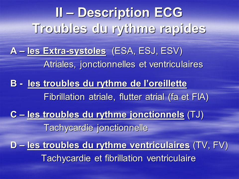 II – Description ECG Troubles du rythme rapides