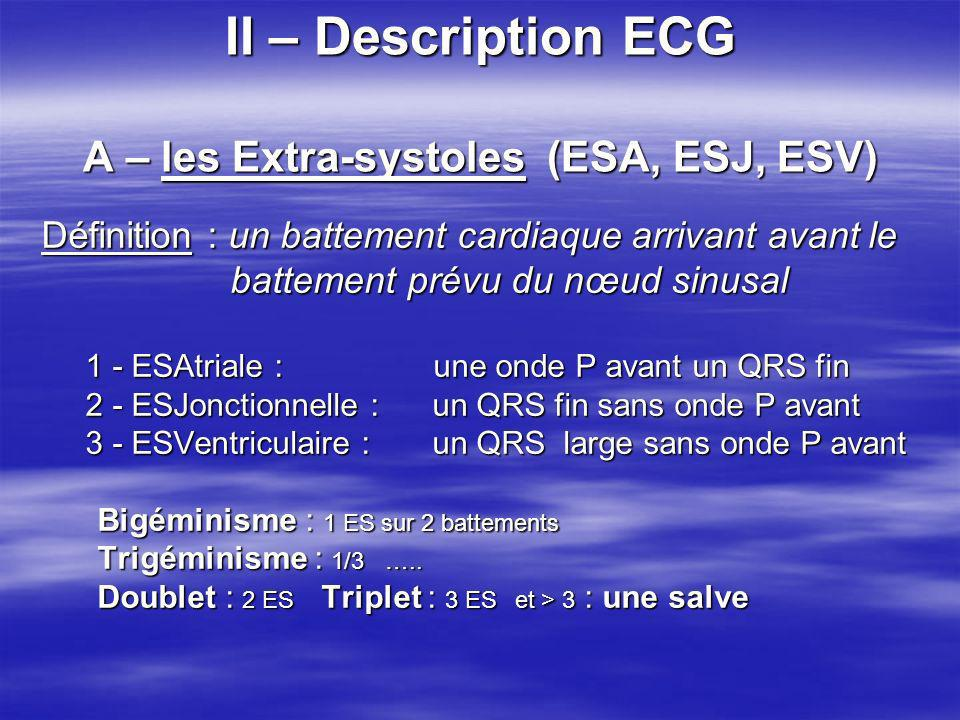 II – Description ECG A – les Extra-systoles (ESA, ESJ, ESV)