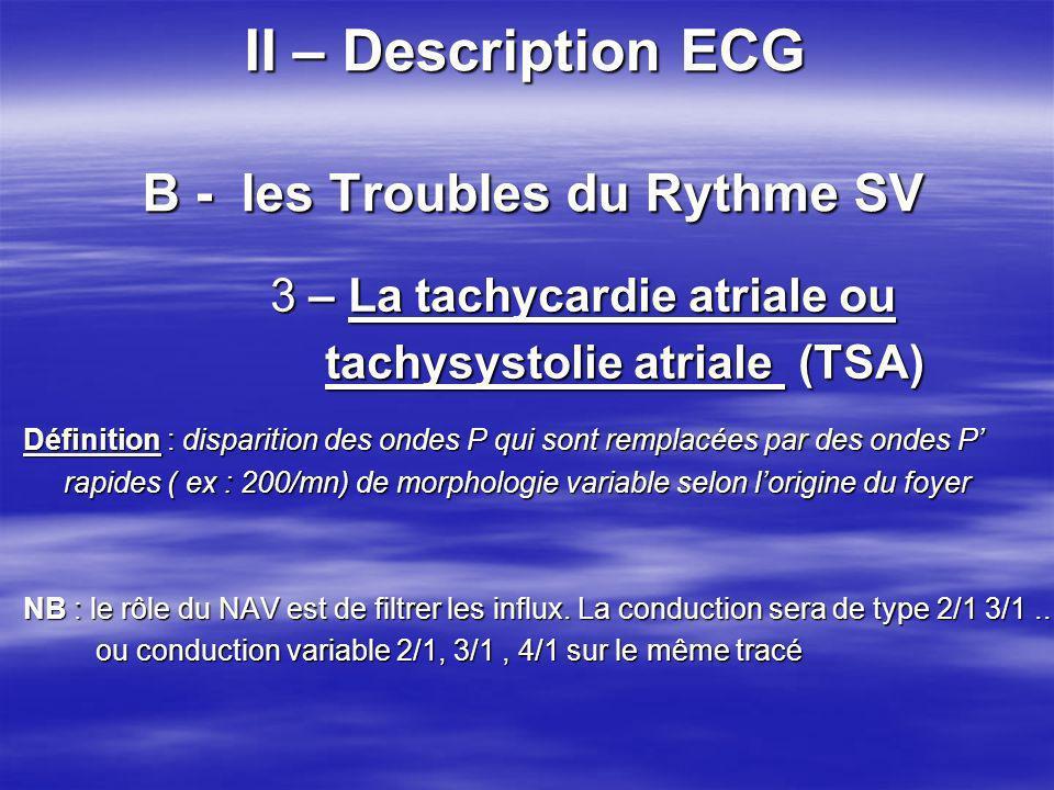 II – Description ECG B - les Troubles du Rythme SV