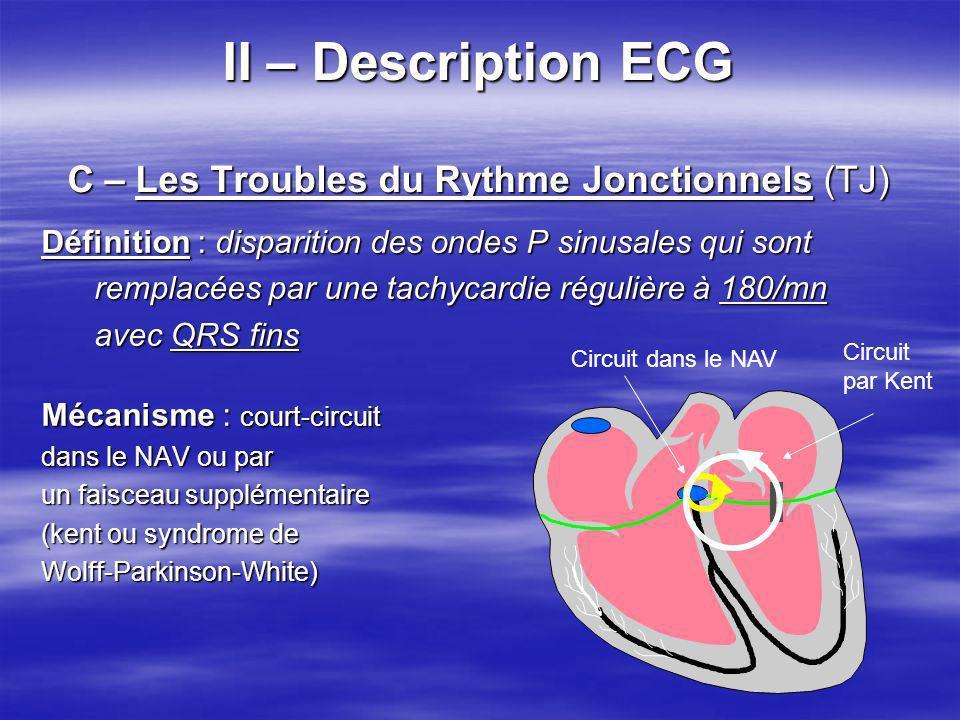 II – Description ECG C – Les Troubles du Rythme Jonctionnels (TJ)