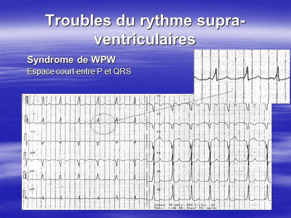 Troubles du rythme supra-ventriculaires