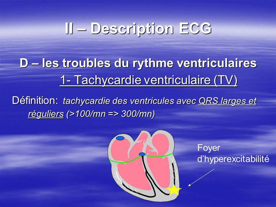 II – Description ECG D – les troubles du rythme ventriculaires