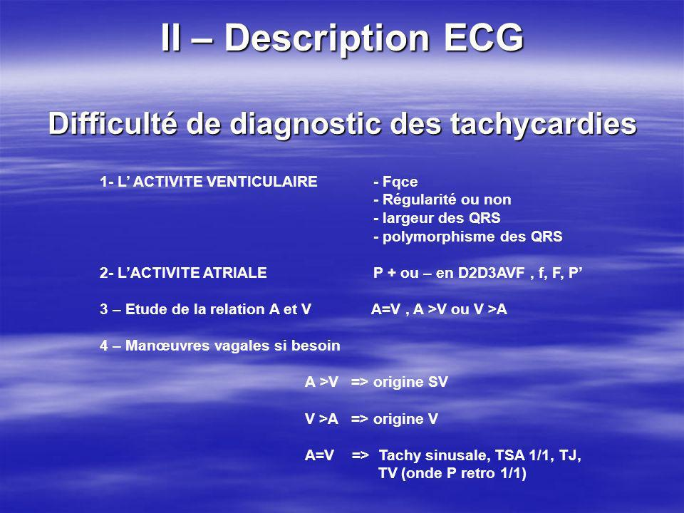 II – Description ECG Difficulté de diagnostic des tachycardies