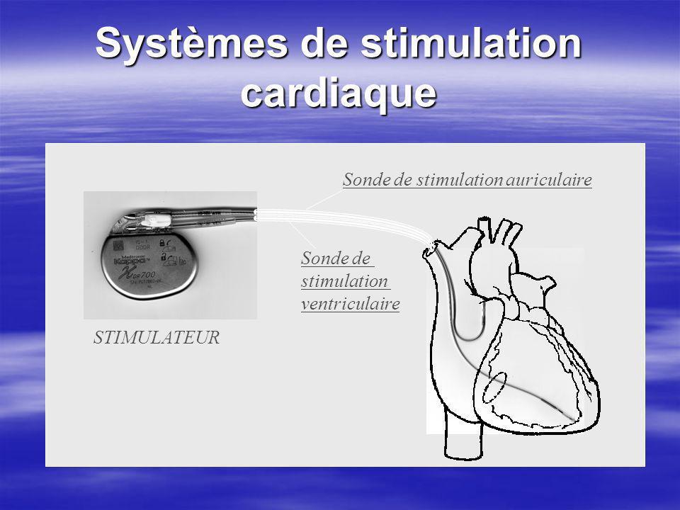 Systèmes de stimulation cardiaque