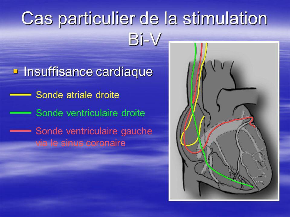 Cas particulier de la stimulation Bi-V