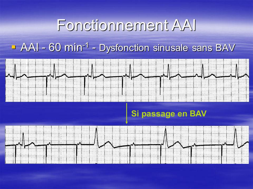 Fonctionnement AAI AAI - 60 min-1 - Dysfonction sinusale sans BAV