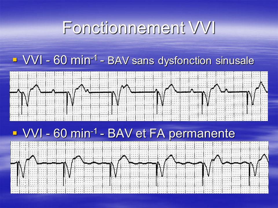 Fonctionnement VVI VVI - 60 min-1 - BAV sans dysfonction sinusale