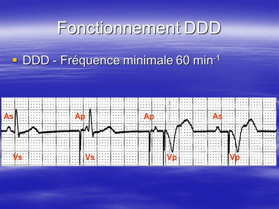 Fonctionnement DDD DDD - Fréquence minimale 60 min-1 As Ap Vs Vp