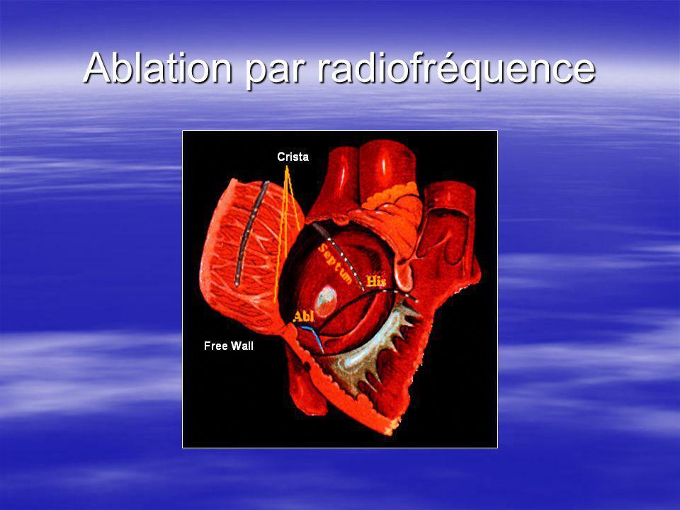 Ablation par radiofréquence