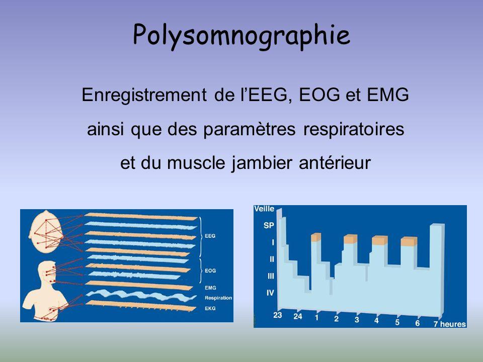 Polysomnographie Enregistrement de l'EEG, EOG et EMG