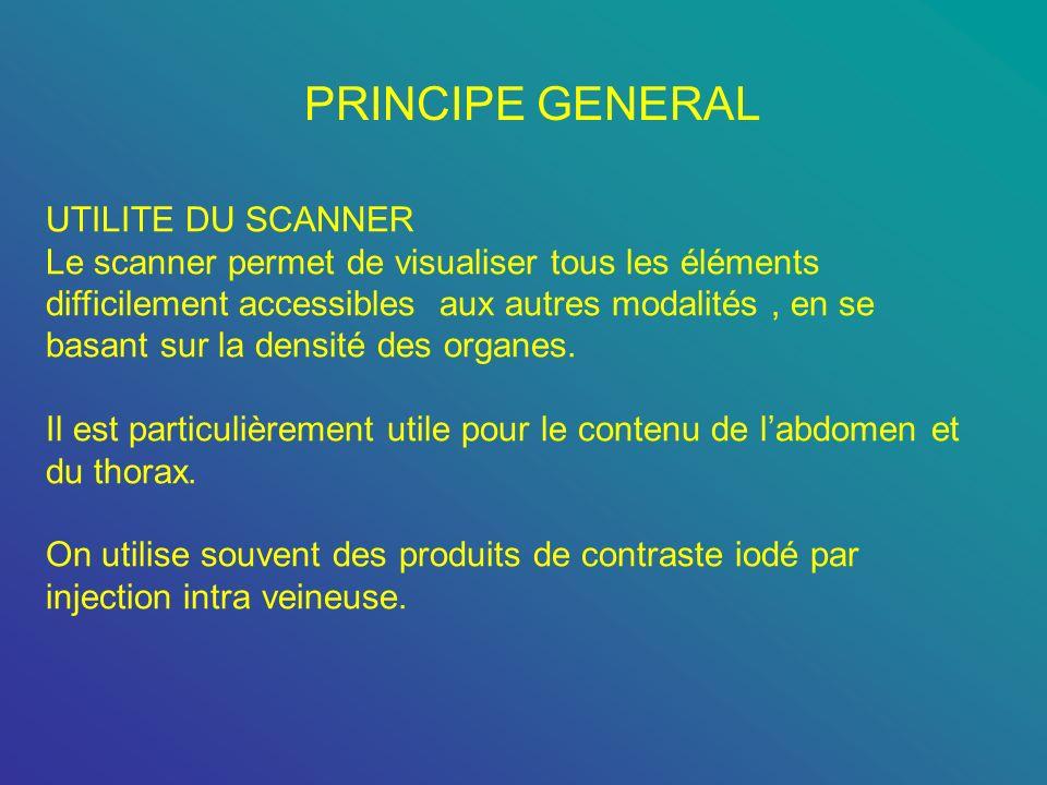 PRINCIPE GENERAL UTILITE DU SCANNER