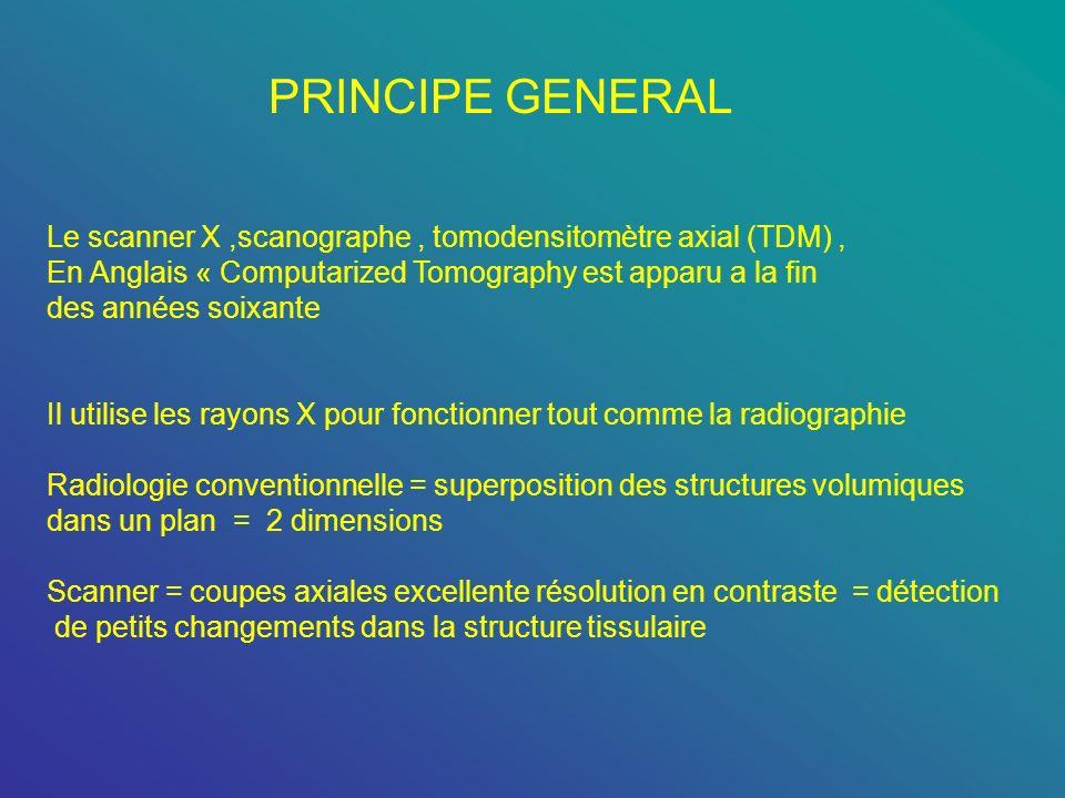 PRINCIPE GENERAL Le scanner X ,scanographe , tomodensitomètre axial (TDM) , En Anglais « Computarized Tomography est apparu a la fin.