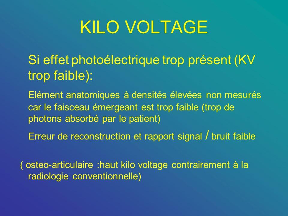 KILO VOLTAGE Si effet photoélectrique trop présent (KV trop faible):