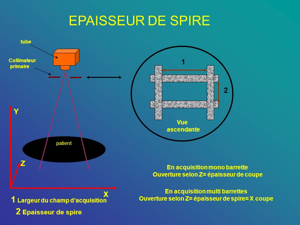 EPAISSEUR DE SPIRE 1 Largeur du champ d'acquisition