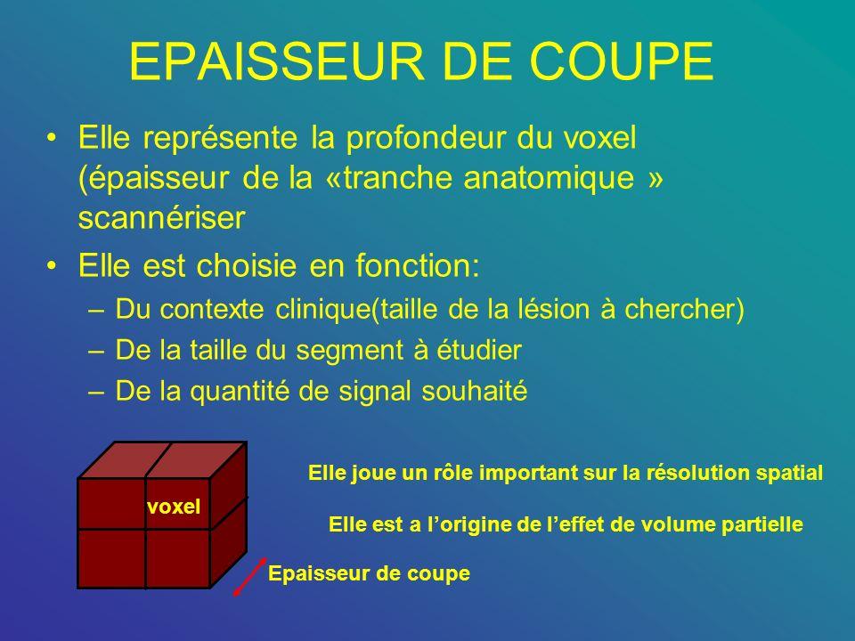 EPAISSEUR DE COUPE Elle représente la profondeur du voxel (épaisseur de la «tranche anatomique » scannériser.