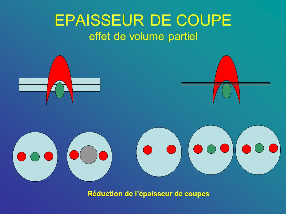 EPAISSEUR DE COUPE effet de volume partiel